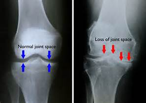 Normal Knee Joint On A Dog With Arthritis X-ray